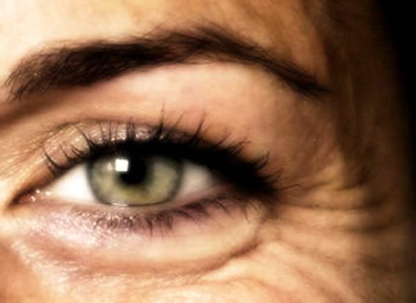 Wrinkles Stop